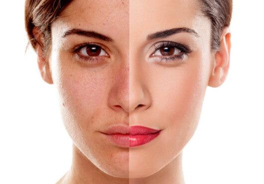 acne ipl