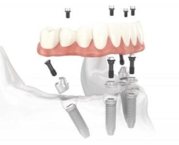 tratamiento implantes dentales