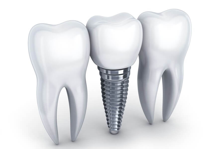 beneficios implante dental