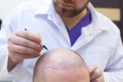 clinica injerto capilar madrid