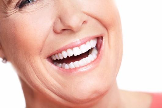 precio dentadura fija implantes