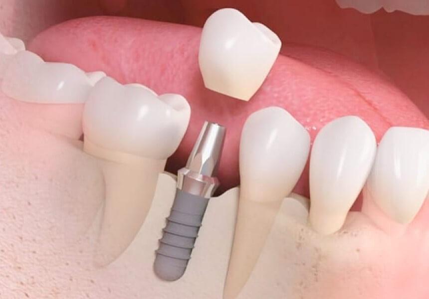 puente dental o implante
