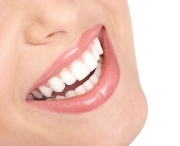 resultados implantes dentales