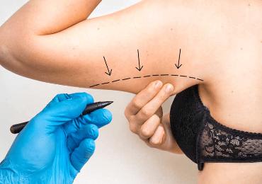 Branquioplastia