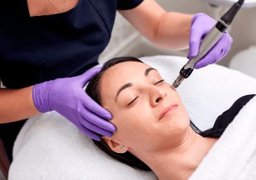 Quitar Marcas de acné