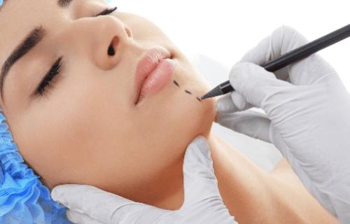 Liposucción de cuello