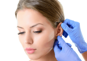 Lóbuloplastia