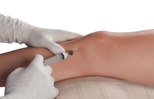 Plasma rico en plaquetas rodilla