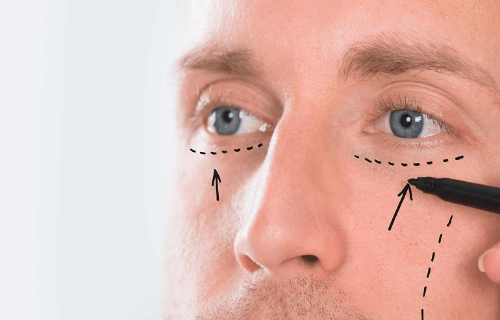 cirugia-de-parpados
