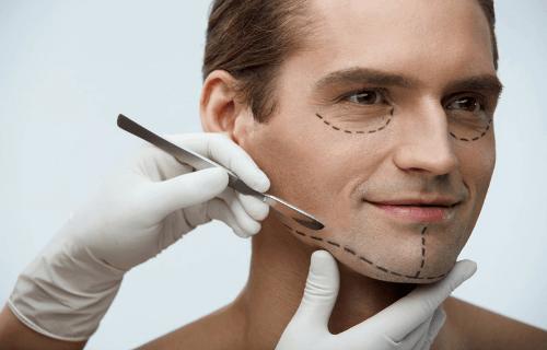 Masculinización ácido hialuroico