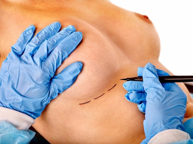 Cirugia-de-Senos