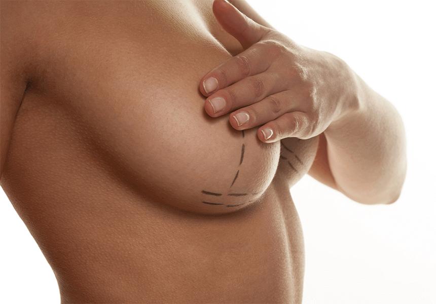 Levantamiento-de-senos